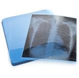 Пэт сырья сухой пленки в медицинских ультразвуковых рентгеновских пленок