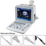 Heißer Verkäufer-beweglicher Ultraschall-Scanner mit multi Frequenz-Fühler