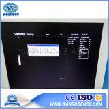 Us370病院装置完全デジタルトロリー超音波のスキャンナー