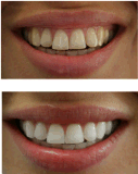 Professional double Baril 35 % HP Kit de blanchiment des dents