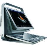 Hospital Medical Sonoscape S9 con pantalla táctil portátil Doppler Color 3D 4D Ecógrafo