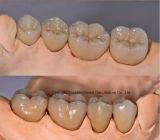 Pfm Krone für Gebiss vom chinesischen zahnmedizinischen Labor