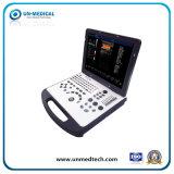 Macchina portatile di ultrasuono di Doppler di colore 2D/3D con la sonda convessa