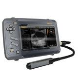 De medische Ultrasone klank van de Aanraking van de Apparatuur S6 Lineaire Draagbare