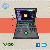 Низкая цена ноутбука полностью цифровая ветеринарных ультразвукового сканера с CW Mode (YJ - C60)