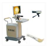 Infrarood-inspectieapparatuur voor mammarie-klier (professioneel type)