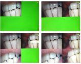 Зубоврачебная Intraoral камера с изображением в функции изображения