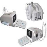 B, B/B, B/M, M-режиме портативного ультразвукового сканера .