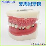 치과 치주병 이 모형/이 의학 모형
