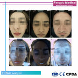 3D GezichtsApparatuur van de Schoonheid van het Meetapparaat van de Huid van Magnifier van de Huid van de Analysator van de Huid