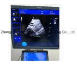 Vero scanner di ultrasuono della strumentazione di diagnosi di 4D Cw