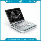 '' компьтер-книжки приспособления Ultrasonography 15 блок развертки ультразвука ультразвуковой медицинский обнаруживая (AG-BU007)