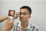 Câmera Retinal Portátil Não-Mydria Digital