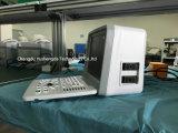 세륨 병원 장비 의료 기기 디지털 휴대용 초음파 스캐너