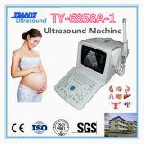 Fabrik-Zubehör-beweglicher Ultraschall-Scanner mit niedrigem Preis