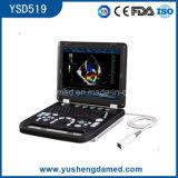 Computador portátil com aprovação CE Medical imaginando comodidades ultra-sonografia com Doppler colorido