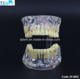 Het tand Model van de Tanden van de Studie van het Onderwijs van de Anatomie van de Behandeling Othodontic (Di-M02)