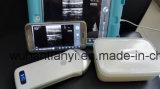 Scanner sans fil portatif d'ultrason de modèle neuf pour musculo-squelettique