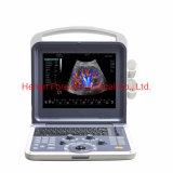 L'équipement hospitalier échographe portable échographie cardiaque