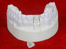 Customrized Emax mit schöner Farbe als realen Zähnen