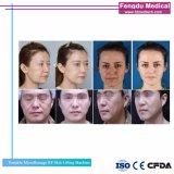 Apretando la piel de RF de elevación de la piel y arrugas de la extracción del dispositivo de belleza