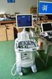 Clinique ou hôpital/famille/chariot numérique de l'utilisation humaine de la Communauté échographe Atnl/51353