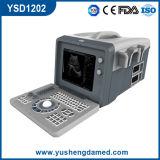 세륨 의학 병원 장비 방광 볼록한 휴대용 디지털 초음파 스캐너