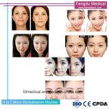 Newest Diamond Microdermabrasion profond rajeunissement de la peau pour la vente de périphérique