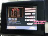 Tecnologia de terapia de choque e tratar a dor em função das articulações
