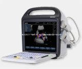 Farben-Doppler-System (Ultraschall, ultrasoni, Farbe Doppler, Scanner, 3D, 4D)