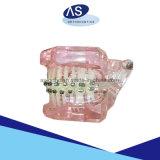 Auto come-Ortodontico del fornitore che lega parentesi