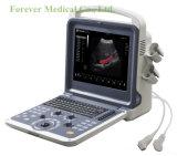 12 échographie médicale diagnostique de Doppler de pleine Digitals couleur de pouce DEL