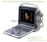 Portable Most Color Doppler Ultrasound Similar with Medical Mindray