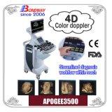 El ultrasonido Equipos Médicos, 3D, 4D ecografía Doppler de la máquina, Mindray Toshiba, Ge máquina ultrasonido, escáner de ultrasonido