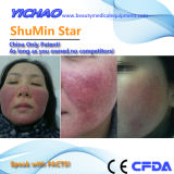 Shumin Star 10 veces los efectos del láser Hifu máquina estética