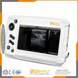 Sonomaxx300 koop de Medische Ultrasone klank van Siemens van de Apparatuur