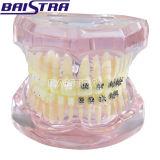 세륨에 의하여 증명되는 절반 금속 절반 세라믹 가르침 치과 이 모형