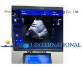 4D couleur vraie Doppler avec l'ultrason de scanner d'OIN de la CE