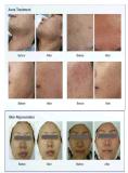 LED para rejuvenescimento da pele