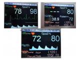 Monitor de paciente de mano de múltiples parámetros de control remoto inalámbrico
