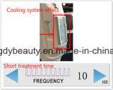 Choisissent la machine d'épilation de Shr avec 300, 000 injections