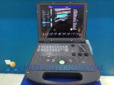 Krankenhaus-Geräten-Farben-Doppler-beweglicher Ultraschall-Scanner