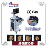 4D ecografía Doppler Color, máquina de ultrasonidos, Ce, La aprobación del FDA, buen precio, fabricante chino, el mejor momento para obtener un 3D, 4D ecografía