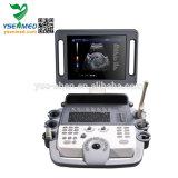 Geräten-mobile Laufkatze-preiswerte Farben-Doppler-Ultraschall-Maschine des Krankenhaus-Ysb-K100