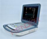 De volledige Digitale Laptop Scanner van de Ultrasone klank van Doppler van de Kleur
