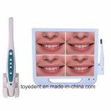 Горячая продажа стоматологических перорального камера Wireless WiFi 17-дюймовый монитор