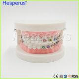La dentatura dentale di standard di 1/2 con metallo mezzo inquadra il modello di ceramica mezzo dei denti della parentesi