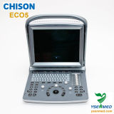 Preço do ultra-som de Doppler Chison Eco5 da cor do Portable médico do hospital 2D