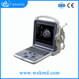 Fornecer o sistema de ultra-som portátil K2