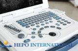 Scanner portatile medico di ultrasuono di prezzi bassi